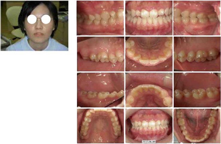顔貌写真、お口の中の写真