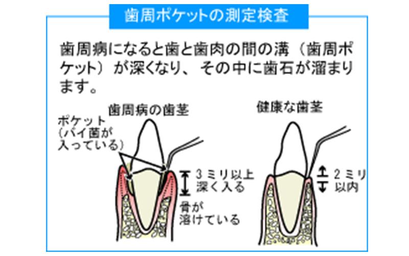 歯槽膿漏(歯周病)の検査