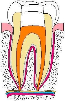 歯:抜髄01.jpg