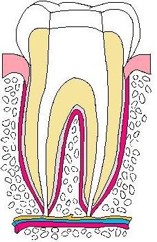 歯:抜髄02.jpg