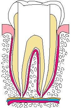 歯:抜髄03.jpg