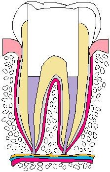 歯:抜髄04.jpg