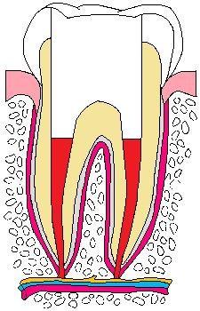 歯:抜髄05.jpg