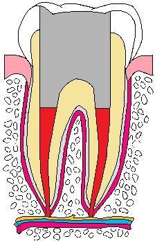 歯:抜髄06.jpg