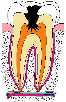 歯:色塗りむし歯.jpg