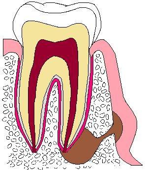歯:色塗りアブセス.jpg