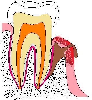 歯:色塗り原本歯Pフィステル.jpg
