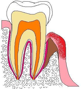 歯:色塗り原本Pアブセス.jpg