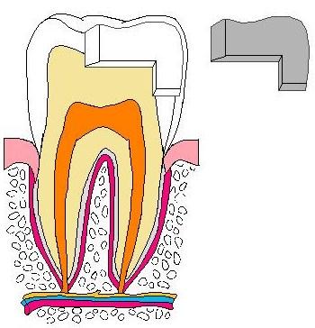 歯:銀歯取れた色塗り原本.jpg