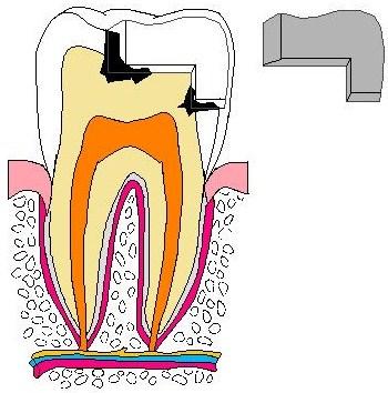 歯:銀歯虫歯取れた色塗り原本.jpg