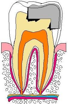 歯:銀歯虫歯色塗り原本.jpg